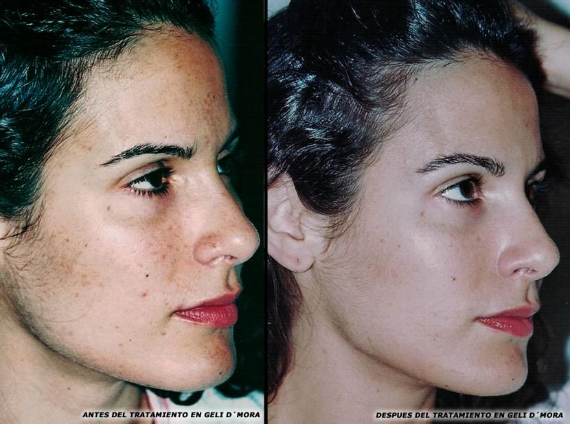 Antes y después del tratamiento de Geli d´Mora de María Angeles.