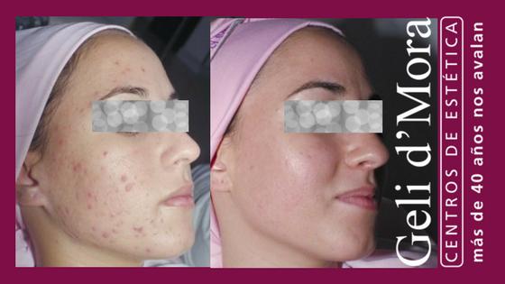 Solución al acné